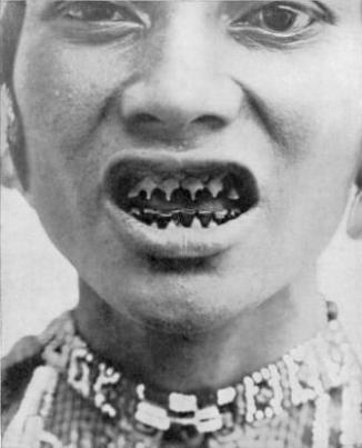 Tooth Sharpening